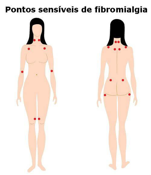 fibromialgia_pontos_sensíveis