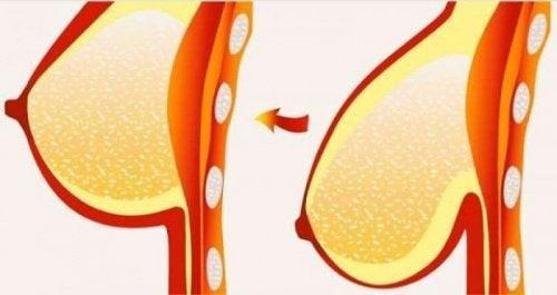 8 conselhos e remédios para evitar a flacidez e a queda dos seios