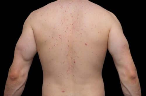 Causas da acne corporal