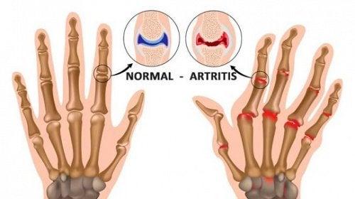 5 coisas que você provavelmente não sabia sobre a artrite