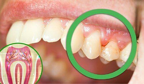 6 razões pelas quais os dentes doem