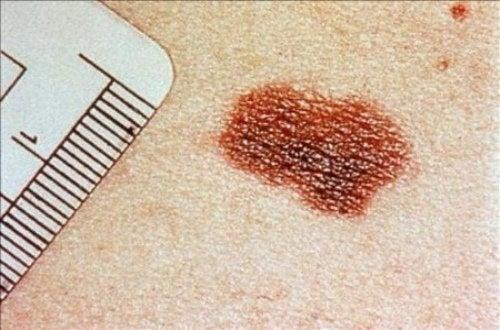 Doenças de pele mais comuns: câncer