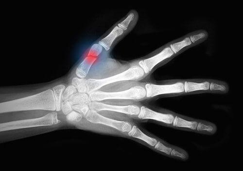 Osteoporose nos ossos da mão