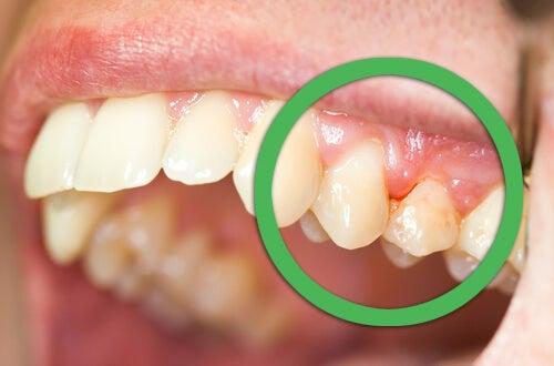 infecção periodontal pode causa dor nos dentes