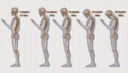Hábitos que prejudicam o pescoço