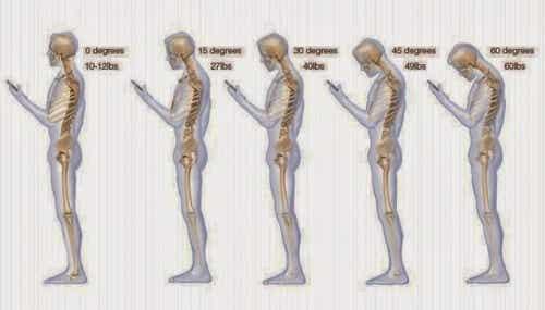 6 hábitos que estão prejudicando seu pescoço