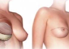 mastectomia-500x252
