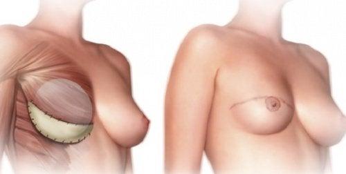 O que você deve saber antes da mastectomia?