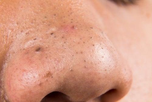Espinhas: 5 tratamentos caseiros para combatê-las