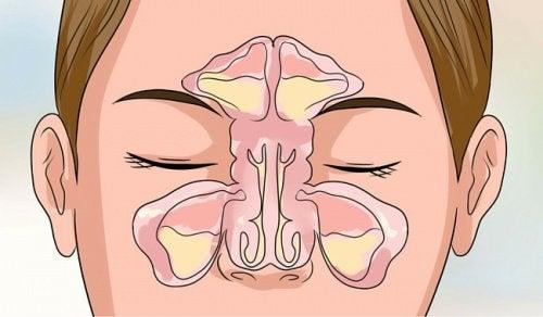 6 dicas para desobstruir seu nariz entupido em poucos minutos