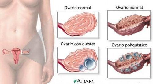 9 fatos sobre os cistos ovarianos que toda mulher deve saber