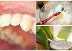 Remédios naturais para combater a placa bacteriana