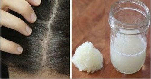 Tratamento caseiro de cebola e mel para combater a queda de cabelo