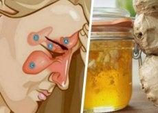 Remédio natural para aliviar sinusite