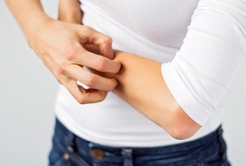 Alergia às bijjouterias