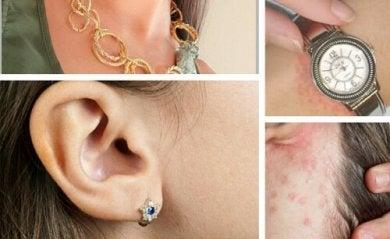 Como tratar a alergia às bijuterias?