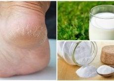 Tratamento para ter pés macios