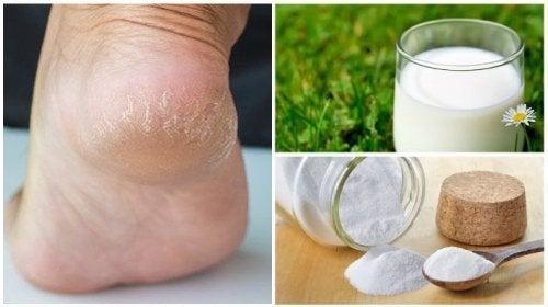 Combine estes dois ingredientes naturais para ter pés macios e bonitos