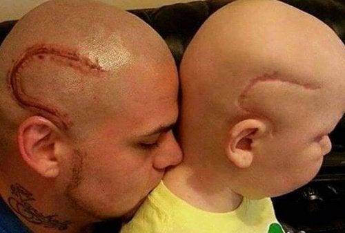 """""""Agora somos iguais"""".  Pai tatua a cicatriz de seu filho que foi operado de um câncer"""