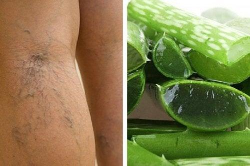 Complemento natural com babosa para tratar as úlceras varicosas