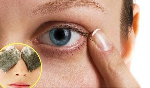 Como eliminar as olheiras com remédios caseiros