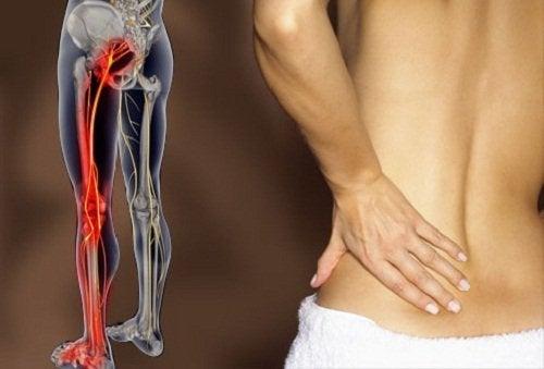 Como aliviar as dores no nervo ciático com exercícios