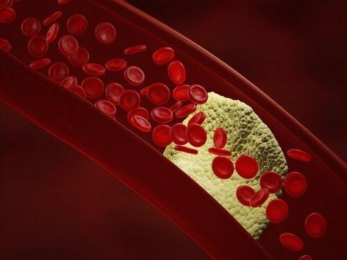 O alho para o sangue