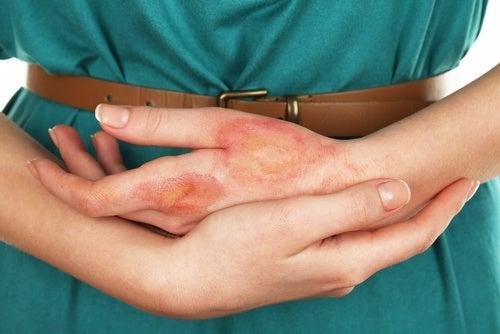 infecção-câncer-de-pele