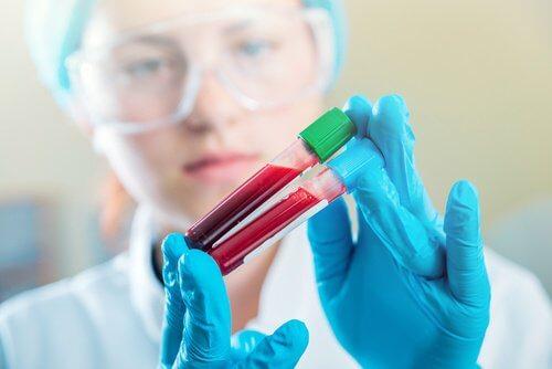 Exame de sangue para artrose