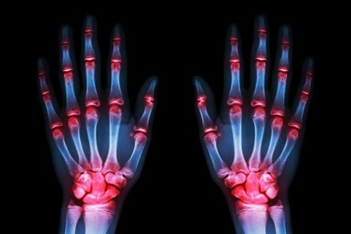 """Segundo um estudo, em 5 ou 10 anos haverá tratamento para """"frear"""" a artrose"""