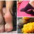 Cascas de limão: por que colocá-las nos pés antes de dormir