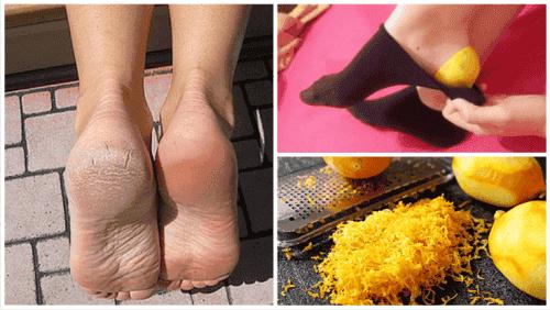 Descubra por que colocar cascas de limão em seus pés antes de ir dormir