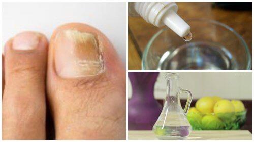 """Fabrique um remédio """"antifungos"""" para as unhas"""