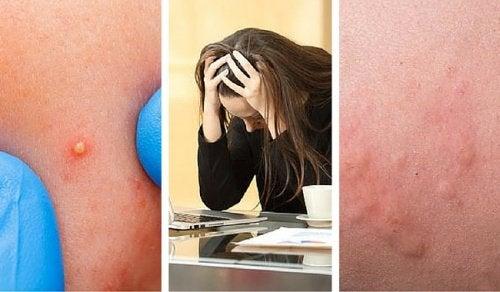 7 indícios de que o estresse está afetando-o além da conta