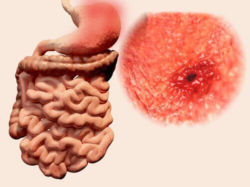 ulcera-gastrica-causa-de-vazio-no-estomago