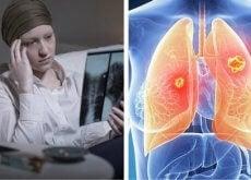 por-que-o-cancer-de-pulmao-e-muito-mais-mortal-nas-mulheres-500x292
