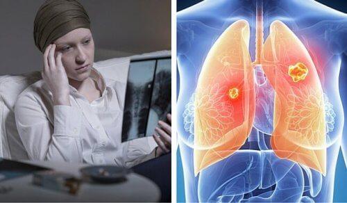 O câncer de pulmão é muito mais mortal nas mulheres