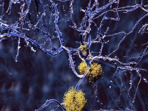 Cúrcuma atuando sobre neurônios