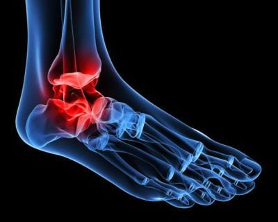 Figura de artrose de tornozelo