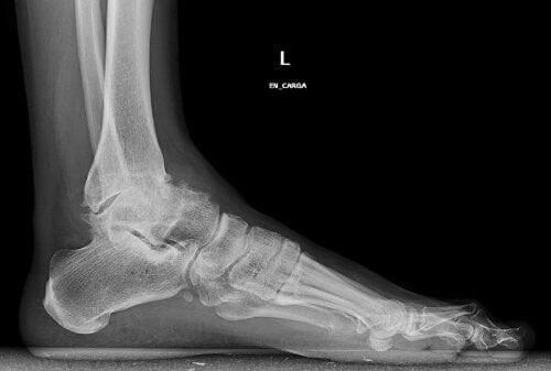 Imagem da artrose de tornozelo