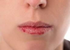 Sintomas de câncer de orofaringe que você deve conhecer: muito importante!