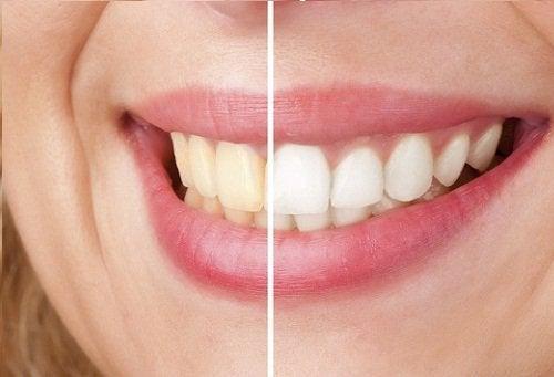 Dentes brancos e amarelados