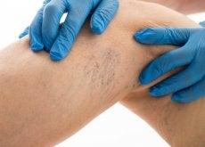 Como aliviar as dores causadas pelas varizes