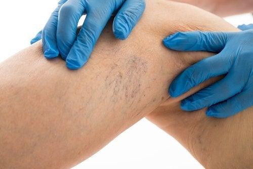 Dores causadas pelas varizes: como aliviá-las