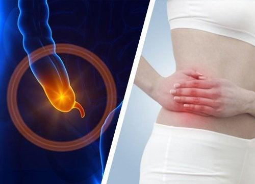 Sinais e os sintomas da apendicite