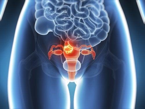 Fibroma uterino