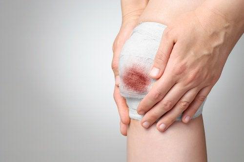 ferida-sangrando