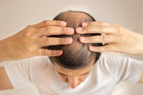 Problemas de perda de cabelo por causa do fígado