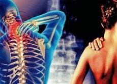 Cervicobraquialgia: dor que vai do pescoço ao braço