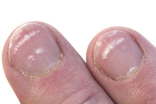 Por que aparecem manchas brancas nas unhas?